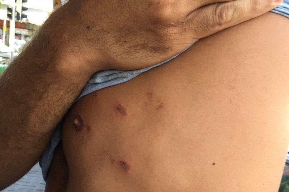 נתניה: שחקן נבחרת ישראל בעבר הוכה וחושמל על ידי שוטרים